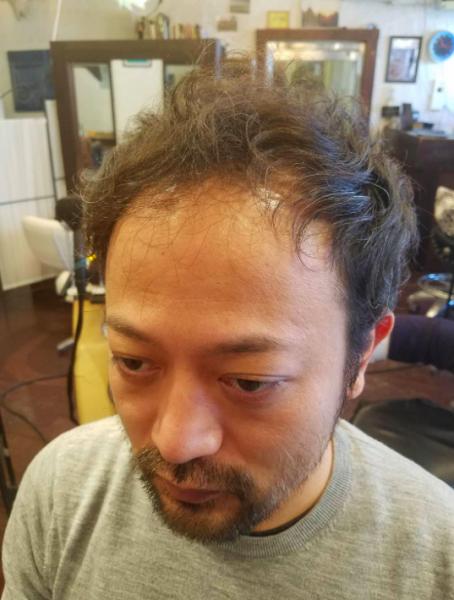 男の薄毛に似合う髪型について『実例編』ビフォー&アフター特集