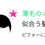 男の薄毛に似合う髪型について『実例編』ビフォー&アフター特集!