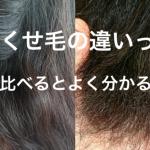 【疑問】くせ毛と天パの違いって何?