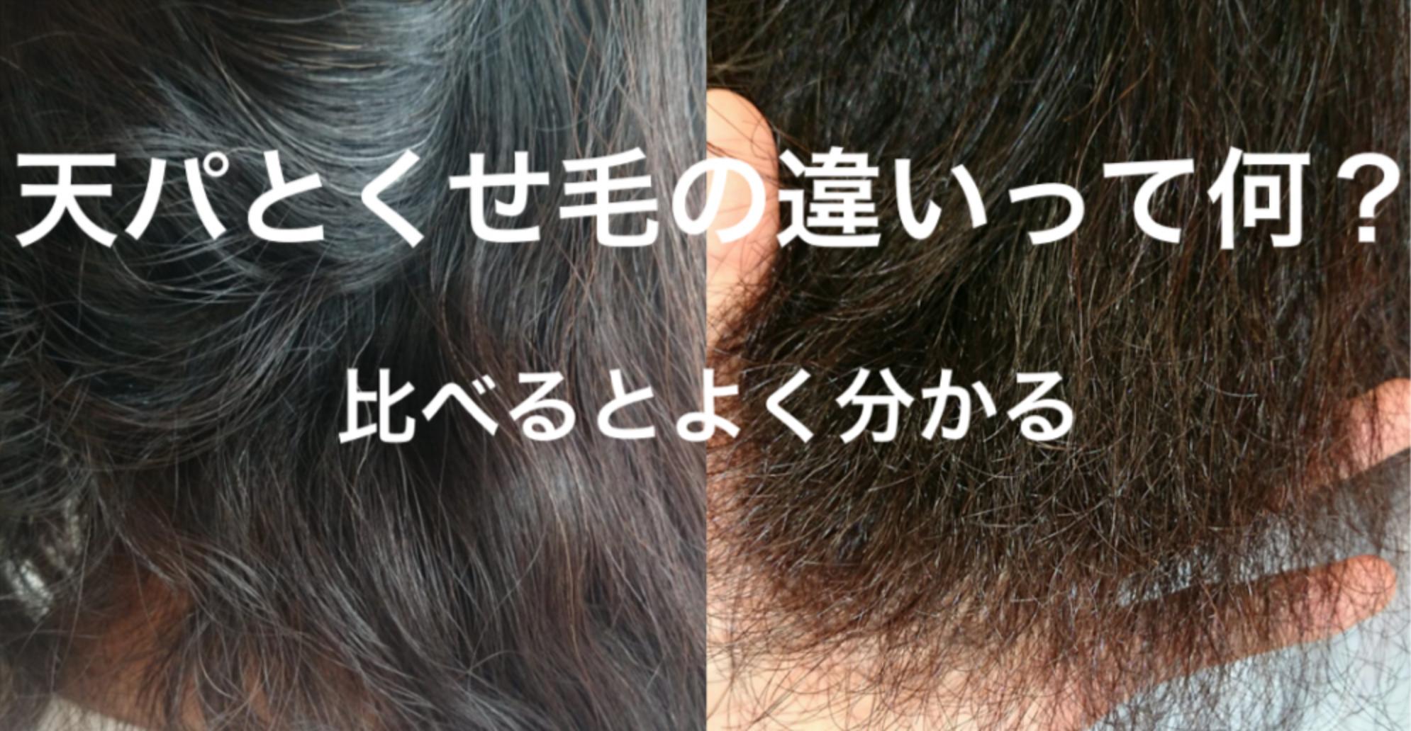 ひどい くせ毛 くせ毛が乾燥で酷い!乾燥したようなくせ毛を改善するには?