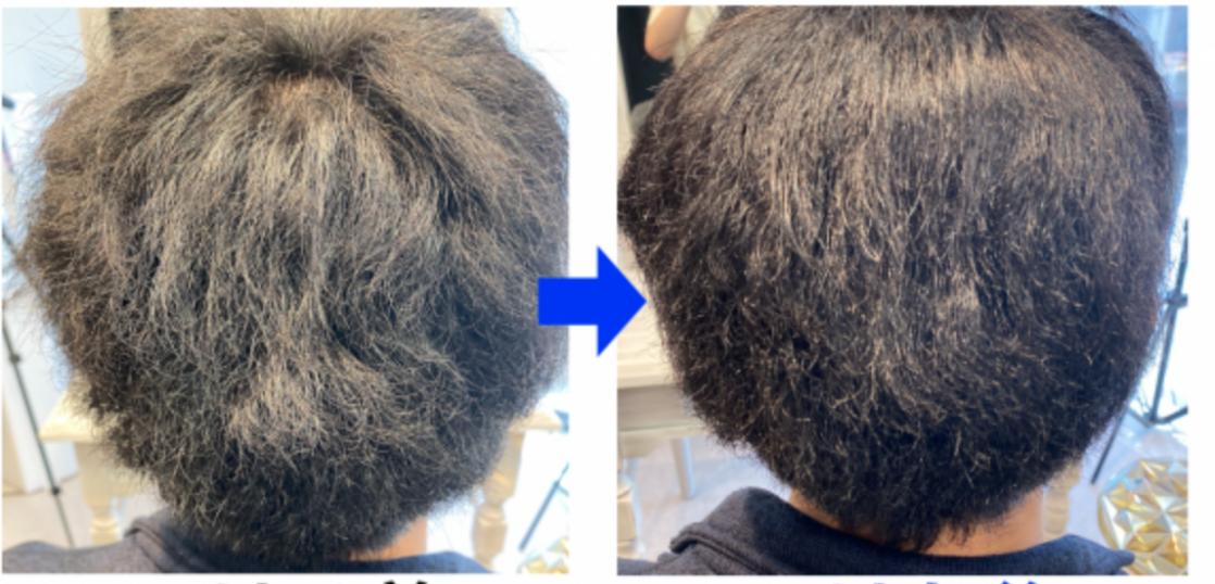 くせ毛を治す方法